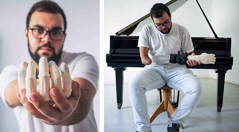 Tunesisches Start-up Bionics bringt günstige Prothese für ärmere Länder und Kinder